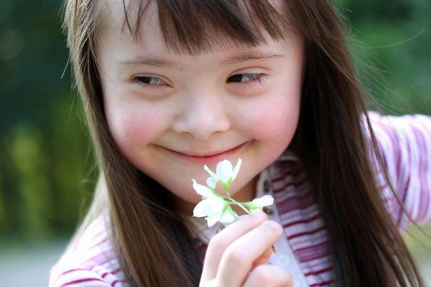 Down-Syndrom (Trisomie 21)